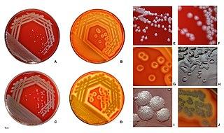 <i>Pseudomonas aeruginosa</i> Species of bacterium