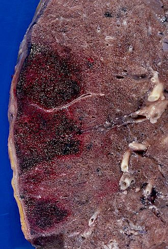 Hemorrhagic infarct - Recent hemorrhagic infarcts.