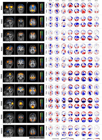 Resting state fMRI -  This image is from a study using both fMRI and EEG acquisition at the resting state. The left row shows sagittal, coronal and horizontal slices of the ten RSNs. On the right side the covariance and t-maps for the 8 frequency bands are displayed.