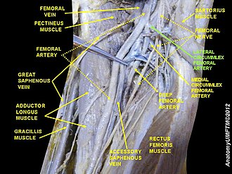 Lateral circumflex femoral artery - Image: Slide 10LLLL
