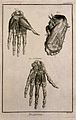 The muscles of the hand, after Albinus, and of the foot, aft Wellcome V0007835ER.jpg