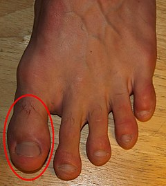 Toes by David Shankbone, Hallux.jpg