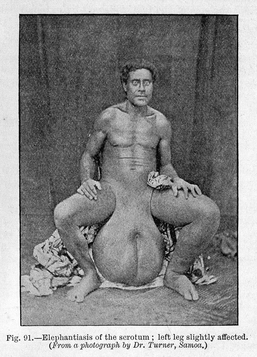 Mann mit Riesenschwanz