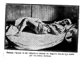 Women wounded from Kapakli.png
