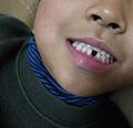 歯 (5463671474).jpg