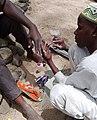 Autre vue de la santé des ongles à Maroua.jpg
