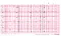 Brugada syndrome type1 example4 (CardioNetworks ECGpedia).png