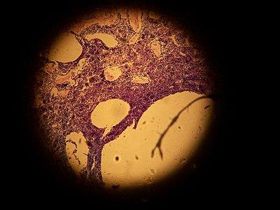 Cellule epiteliale.JPG