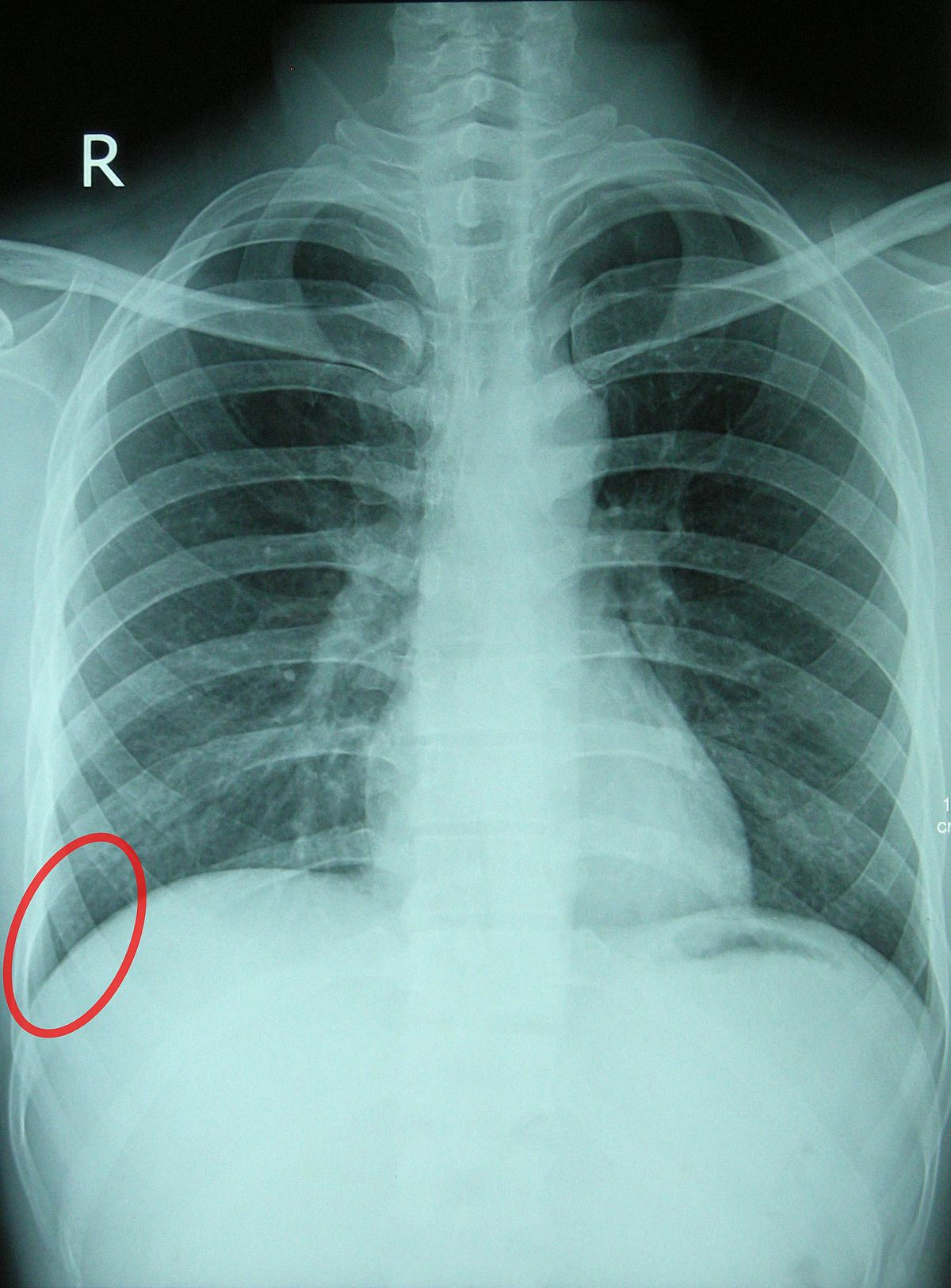 Why do we need an X-ray diffractogram of the lungs, how does it differ from fluorography