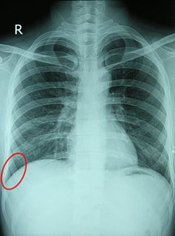 Costodiaphragmatic recess.jpg