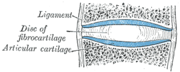 Depiction of an intervertebral disk, a cartilaginous joint.