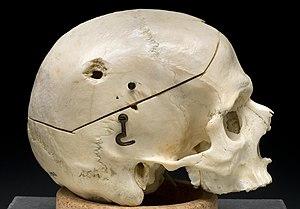 Gunshot skull.jpg