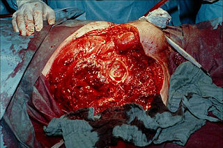 Hemipelvectomy Surgical removal of half of the pelvis and one of the legs