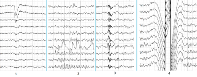 Electroencephalography - Wikipedia
