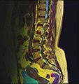 Lumbosacral MRI case 09 11.jpg