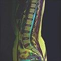 Lumbosacral MRI case 13 05.jpg
