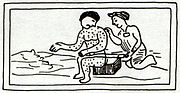 16th-century Aztec print showing a person with measles
