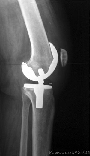 Total Knee replacement : Lateral view (Xray).