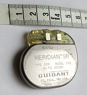 A pacemaker, scale in centimeters