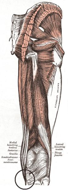 Pata de ganso – Wikipédia, a enciclopédia livre