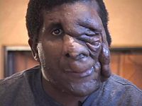 Interview with Reggie Bibbs on his life with neurofibromatosis