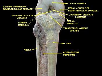 Lateral meniscus - Image: Slide 1besa