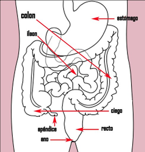 Cáncer colorrectal - Wikiwand