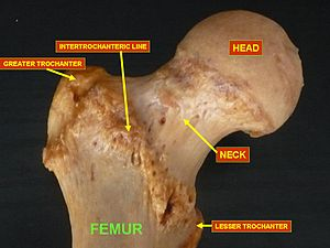 Upper extremity of femur - Upper extremity of left femur viewed from behind showing head, neck, and the greater, lesser trochanter, intertrochanteric crest and trochanteric fossa