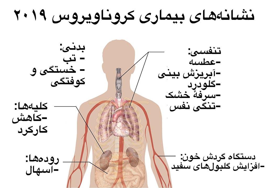 Symptoms of coronavirus disease 2019 in Persian.jpg
