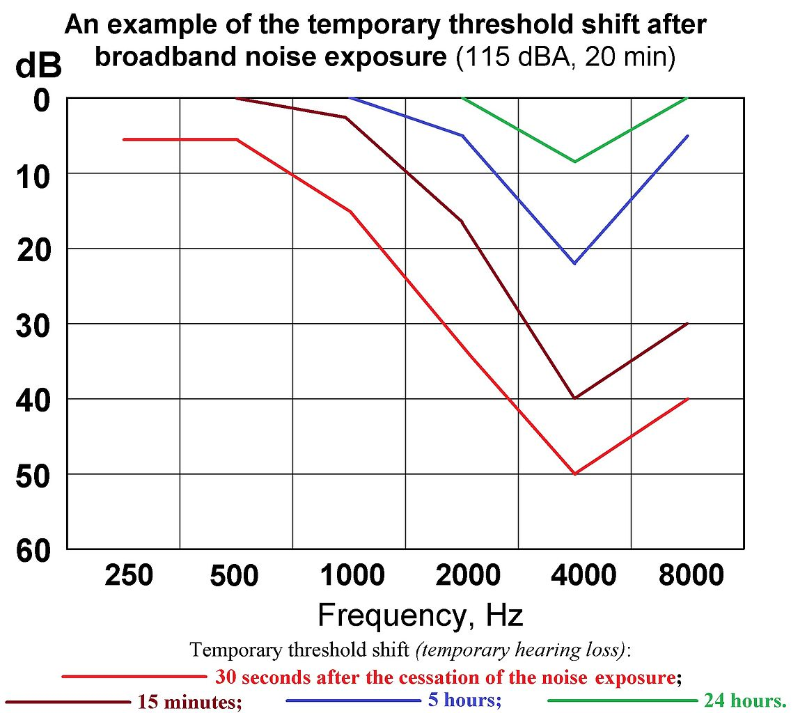 Plot Diagram Example: Temporary threshold shift (hearing loss) after noise exposure ,Chart