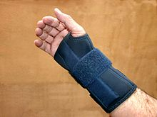 Arthritis hand x ray