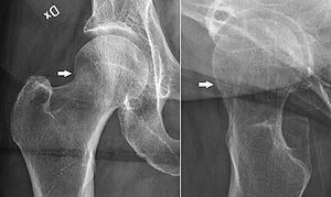 X-ray of hip fractures - radlines.orgX Ray Femur Fracture