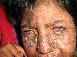 Trachoma  Wikipedia