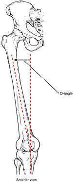 image showing how q angle is measured the degree of genu valgum