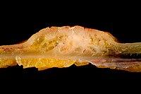 Adenocarcinoma of the Sigmoid Colon (longitudinal section, closeup).jpg