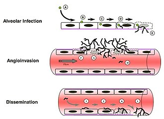 Aspergillus fumigatus - Image: Aspergillus fumigatus Invasive Disease Mechanism Diagram