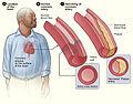 Atherosclerosis 2011.jpg