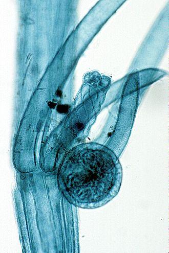 Chara (alga) - Image: Chara gametangia WM
