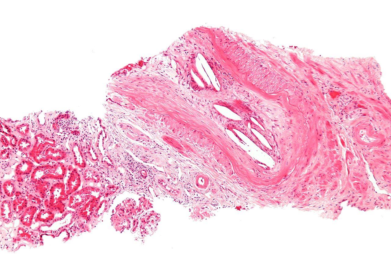 Cholesterol embolus - intermed mag.jpg