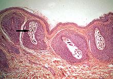 Les parasites sur anale