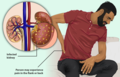 Depiction of a man suffering from a Kidney Infection.png