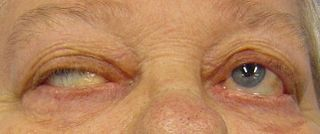 Myasthenia gravis Autoimmune disease resulting in skeletal muscle weakness