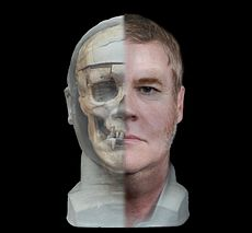 Facial reconstruction of William Burke