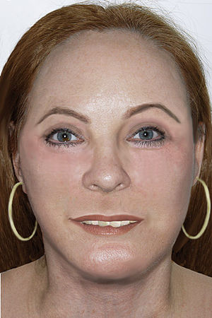 Jacksonville Jane Doe - A reconstruction of what the Jacksonville Jane Doe may have looked like when she was alive.