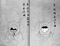 Japanese obstetrics; manuscript on twin birth. Wellcome L0027020.jpg