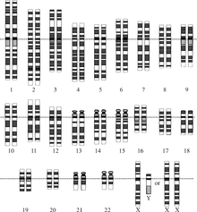 Genetics Of Down Syndrome Wikipedia