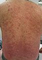 Leukocytoclastic vasculitis caused by reaction to minocycline.jpg