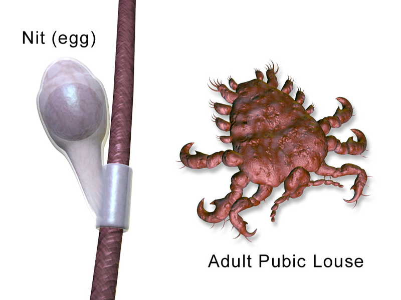 File:Lice Pubic.png
