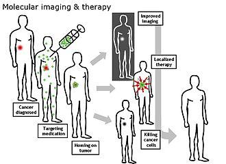 Molecular imaging - Image: Molecular Imaging Therapy