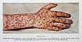 Obsolescent variolous lesions, smallpox Wellcome L0032960.jpg